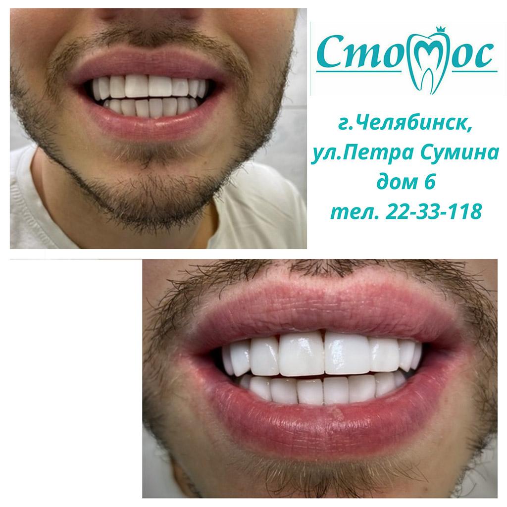 Работа наших стоматологов-ортопедов