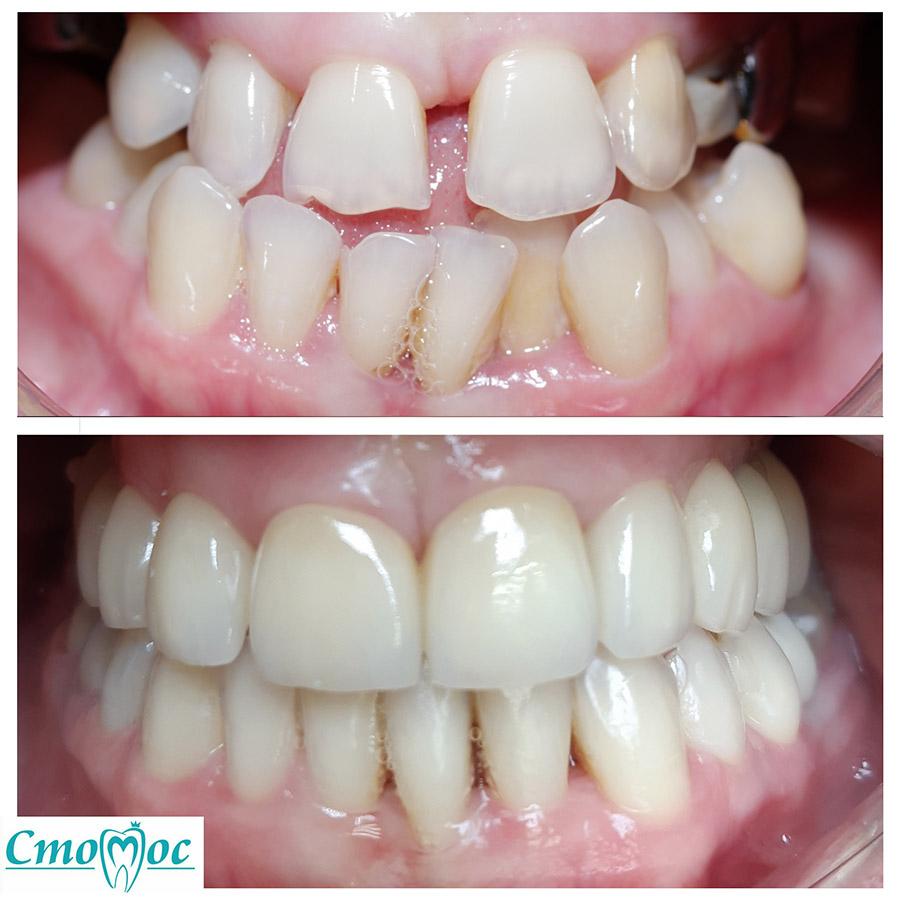 Ортодонтическое лечение с помощью лигатурной брекет-системы